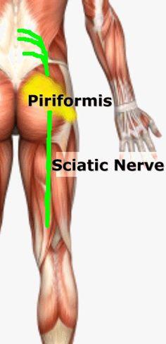 Sciatic Nerve Relief, Sciatica Exercises, Sciatic Pain, Back Pain Exercises, Sciatica Massage, What Is Sciatic Nerve, Chronic Sciatica, Syndrome Pyramidal, Massage Therapy
