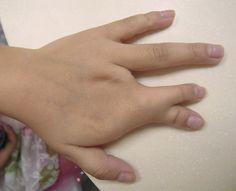 Syndactyly is a condition wherin two or more digits are fused together.