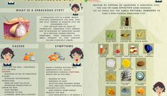 17 Home Remedies for Sebaceous Cyst | Home Remedies – Natural & Herbal Cures Made at Home