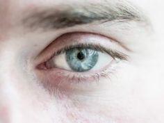 Επιστήμονες από την Ευρώπη και τις ΗΠΑ ανακοίνωσαν ότι μία νέα γονιδιακή θεραπεία, η οποία εφαρμόστηκε στο ένα μάτι σε ασθενείς που πάσχουν από τη σπάνια κληρονομική οπτική νευροπάθεια Λέμπερ (LHON). Την πιο συχνή αιτία μιτοχονδριακής τύφλωσης, βελτίωσε σημαντικά την όραση και στα δύο μάτια, καθώς με κάποιον απρόσμενο τρόπο το θεραπευτικό αποτέλεσμα μεταφέρθηκε και […] Περισσότερα Οπτική νευροπάθεια Λέμπερ: Γονιδιακή θεραπεία στο ένα μάτι βελτιώνει την όραση και στα δύο μάτια σε τυφλούς α Kai, Chicken