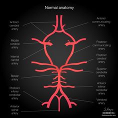 Common variants of the circle of Willis: diagrams | Radiology Case | Radiopaedia.org