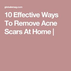 10 Effective Ways To Remove Acne Scars At Home - Globalemag Scar Removal Cream, Acne Scar Removal, How To Get Rid Of Acne, How To Remove, Acne Solutions, Remove Acne, Hormonal Acne, Acne Remedies, Skin Problems
