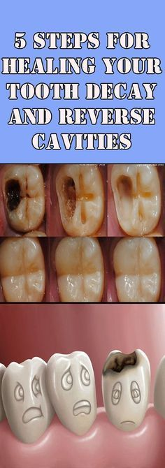 5 Tips on How to Reverse Cavities and Heal Tooth Decay Naturally! - Healthy Tips Help Teeth Health, Healthy Teeth, Oral Health, Dental Health, Dental Care, Healthy Tips, Health And Wellness, Eat Healthy, Healthy Women