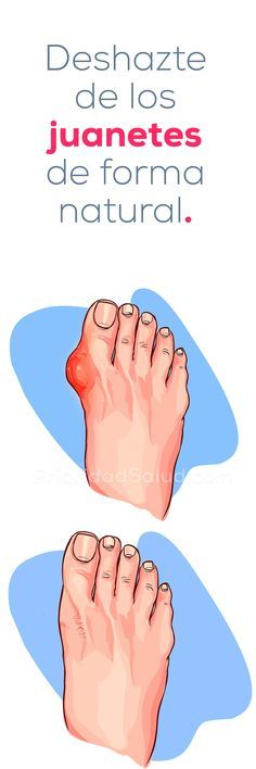 How to remove bunions naturally, hallux valgus, foot bones # bunions Herbal Remedies, Health Remedies, Home Remedies, Natural Remedies, How To Remove Bunions, Natural Treatments, Beauty Care, Body Care, Health And Beauty