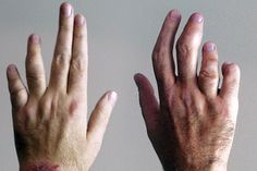 ALTERNATIVE MEDICINES FOR PSORIATIC ARTHRITIS....my hands look very similar to these.