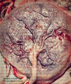 Arbol de la vida???  Placenta!!!!
