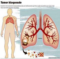 Cientistas criam droga que inibe o crescimento do câncer de pulmão  A substância poderá ser usada contra um dos tipos mais comuns da doença e ainda sem tratamento eficaz
