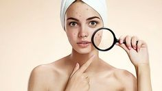 Tips: How to Get Rid of Pimples Got acne? Learn the different types of acne and the treatments on Dr.Got acne? Learn the different types of acne and the treatments on Dr. Cystic Acne Treatment, Natural Acne Treatment, Natural Acne Remedies, Home Remedies For Acne, Acne Treatments, Scar Treatment, Natural Cures, Acne And Pimples, Coconut Oil