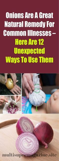Onions Are A Great Natural Remedy For Common Illnesses – Here Are 12 Unexpected Ways To Use Them – Multi Super Magazine