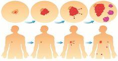 Vědci objevili něco velmi závažné. Zjistili, že 3 druhy chemoterapie běžně používané při léčbě rakoviny prsu zvyšovaly metastazování.