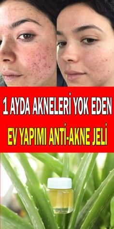 How to make anti-acne cleansing gel at home - Face Care Ideas Face Care, Body Care, Classroom Wall Quotes, How To Get Rid, How To Remove, Aleo Vera, Brown Spots On Face, Anti Aging, Love Your Skin
