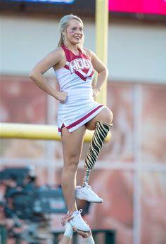 #makenoexcuses One leg, tons of spirit: Amputee cheerleader inspires crowds