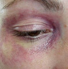 bruise makeup in movie - Google Search