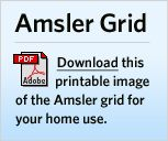 photograph relating to Printable Amsler Grid identify Amsler Grid: A Consider for Macular Degeneration and Other