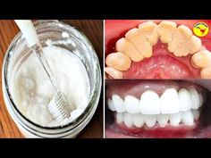 This Amazing 2 Ingredients Will Naturally Whiten Your Teeth! Make Up Artis, Makeup Haul, Makeup Class, Make Up Time, Makeup On Fleek, 2 Ingredients, Makeup Forever, Teeth Whitening, Makeup Addict