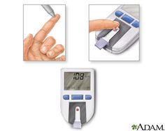 Diabetes is usually a lifelong (chronic) disease in which there are high levels of sugar in the blood.