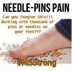 #MS #MSAwareness #CureMS #MSSymptoms #MSPain Multiple Sclerosis Quotes, Multiple Sclerosis Awareness, Demyelinating Disease, Chronic Pain, Chronic Illness, Headache Treatment, Trigeminal Neuralgia, Migraine Relief, Leg Pain