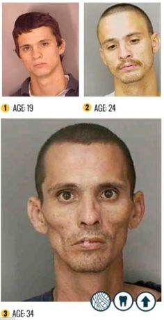 These images are part of a campaign trying to educate people about the physical impacts of methamphetamines. Accelerated aging is one of them. The overall price is far too high