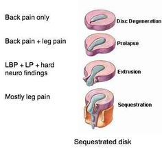pin by herbert arion on leg nerve | pinterest | femoral nerve, Muscles
