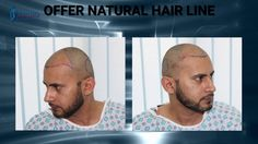 Fue Hair transplant procedure done by Internationally renowned Dr. Tunio. He Performed more than 15000 successful procedures. We deliver best results with Natural Hairline and Maximum Density. Get your appointment now for amazing results: http://www.tuniohairtransplant.com/make-an-appointment/ #TunioAesthetics #fuehairtransplant #hairtransplant #Beforeafter #satisfactoryresults #DHCC #Dubai #UAE