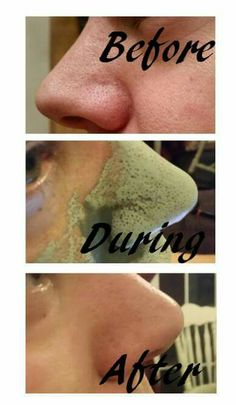 Mud mask Order now.  FB: HM Cosmetic & Anti Ageing Products Email : helenamonaher@gmail.com instraram; hmbeauty90 Snapchat: hmbeauty90