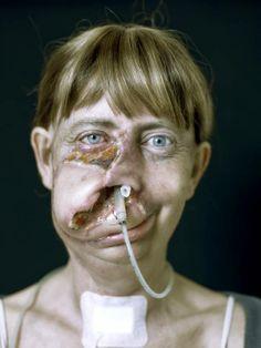 Hasselblad H4D. Dans Gens, Portrait, Femme. Disfigurement A Case, photographie de Cyril Crépin. Image #280809