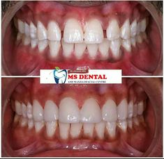 Kovalam, Dental Hospital, Smile Design, Healthy Teeth, Ms, Tourism, Projects To Try, House, Ideas