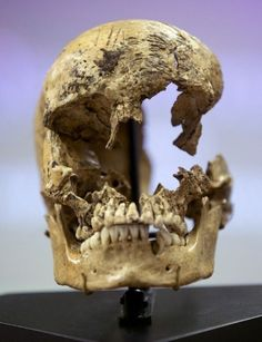 "This skull of a 14-year-old girl was the evidence that the first settlers in Virginia's Jamestown Colony practised cannibalism during the ""Starving Time"" winter of 1609, discovered in 2012. The scratch marks from where the flesh was sliced from the face is evident. The trauma in the front of the skull is from where he skull was bashed open for the brain to be removed, according to Doug Owsley, a forensic anthropologist."
