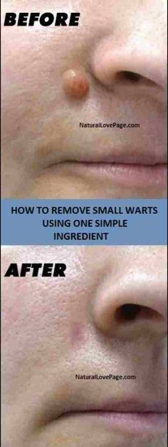 10 Easy And Amazing Natural Ways To Get Rid Of Warts – Stranded Here