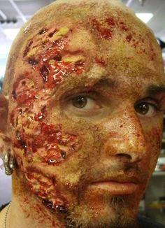 Bruises, burns, scars, acne, warts, moles, birthmarks- burned face