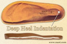Deep Heel Indentation - Helps the body's balance and maintains the natural shape of the pad of the heel that protects the heel bone. | #Naot shoes are available at www.TheShoeMart.com #TheShoeMart.