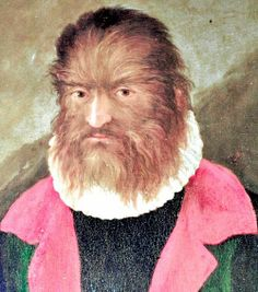Top 10 Alleged Real-Life Werewolves and Wolf-men  During the witch hunt trials that swept across Europe and North America in the early modern period (1500s through 1600s), while numerous women were condemned as suspected witches, a number of men were at the same time condemned as suspected werewolves or wolf men. This list covers a number of these alleged real-life werewolves and wolf men during this era of fanaticism run amok, while expanding our scope of coverage to also include people…