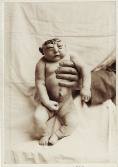 Anencephaly c. 1890's. (Anencephaly is a neural tube defect that occurs when the cephalic end of the neural tube fails to close, resulting in the absence of a major portion of the brain, skull, and scalp.)