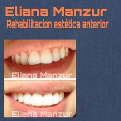 @areadentalmonteria #esteticadental #cosmeticdentistry #aesthetics #aclaramientodental #diseñodesonrisa #sonrisasconsonantes by manzureli Our Cosmetic Dentistry Page: http://www.myimagedental.com/services/cosmetic-dentistry/ Google My Business: https://plus.google.com/ImageDentalStockton/about Our Yelp Page: http://www.yelp.com/biz/image-dental-stockton-3 Our Facebook Page: https://www.facebook.com/MyImageDental Image Dental 3453 Brookside Road Suite A Stockton CA 95219 (209) 955-1500 Mon…