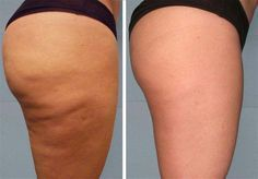 How to get rid of cellulite on legs? Home remedies for cellulite on legs. Treat cellulite on legs fast and naturally. Ways to cure cellulite on thighs. Combattre La Cellulite, Cellulite Exercises, Cellulite Workout, Homemade Coffee Scrub, Stretch Marks On Legs, Dry Brushing Skin, Body Wraps, Anti Cellulite, Thighs