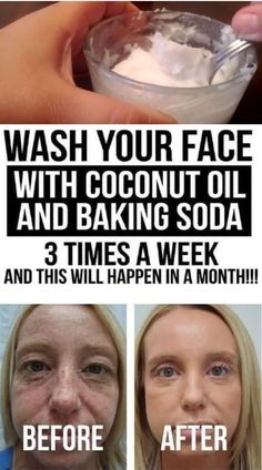 Wash Your Face with Coconut Oil and Baking Soda 3 Times a Week and This Will Happen in a Month! - She Made by Grace