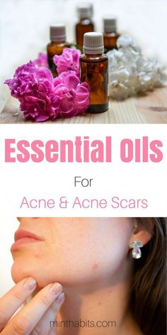 Here are the 8 most powerful essential oils for acne and acne scars for acne prone skin. I also include free essential oil recipes for acne! Back Acne Treatment, Natural Acne Treatment, Natural Skin Care, Acne Treatments, Natural Health, Natural Sleep, Scar Remedies, Natural Cough Remedies, Cold Remedies