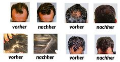 #vorher #nachher #bilder #haarausfall #hairloss #alopecia #calvities