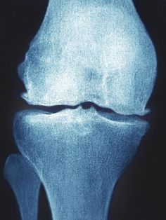 How Are Osteophytes (Bone Spurs) Diagnosed and Treated?