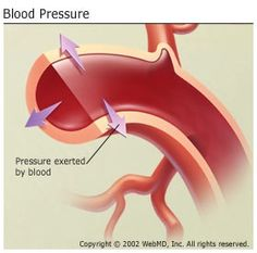 LOW BLOOD PRESSURE  HYPOTENSION * * * Low Blood Pressure Overview Learn more about the basics of low blood pressure, or hypotension, from the experts at WebMD. WebMD Medical Reference Treatment Symptoms