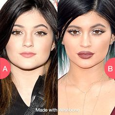 Kylie before or after big lips? Click here to vote @ http://getwishboneapp.com/share/4693158