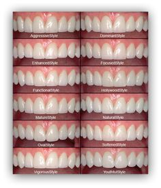 porcelain veneers shape color BL1 BL2 BL3 empress emax loren library 2
