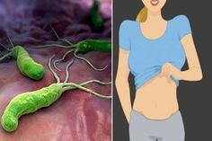 Ha állandóan puffadsz, és nem tudsz lefogyni? Ez a baktérium okozhatja, így iktasd ki!