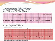 12 Lead EKG Interpretation