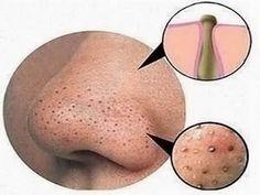 Como remover cravos do nariz - Receita Caseira