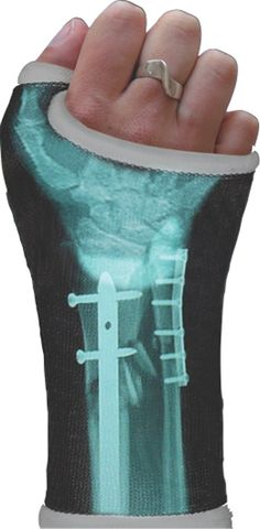 ORTHOPEDIC CASTS CUSTOM DESIGNED WITH YOUR OWN X-RAY  |  If you send the digital file of your X-ray to Colorado-based company Casttoo, they will custom print your break and send it back to you so you can apply it directly to your  cast.