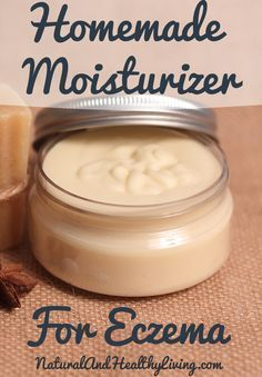 This is a homemade eczema cream recipe. It's all natural lotion! Natural remedies for eczema are hard to come by and this cream is safe for children too!