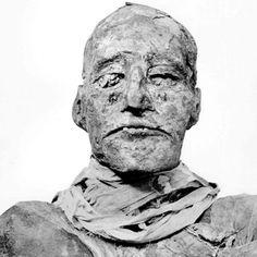"""Tragédia no Antigo Egito - Múmia do faraó egípcio Ramsés III (Foto: Reprodução/""""British Medical Journal"""")"""