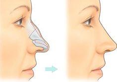 Chỉnh hình mũi gồ là cách làm tác động chỉnh sửa phần xương mũi bị gồ lên hầu như phương pháp chuần xác, trợ giúp tạo dạng hình mũi nhẹ nh…