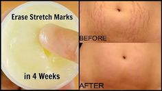 This cream will erase all stretch marks from your skin like rubber !!